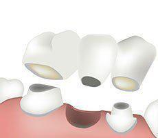 Dental Bridge Dental Crown Washington DC