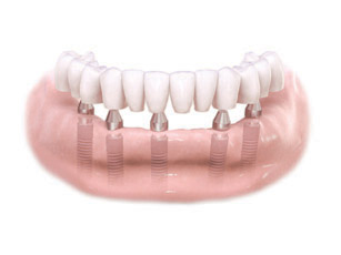 Full Arch Implant Dentures Washington DC